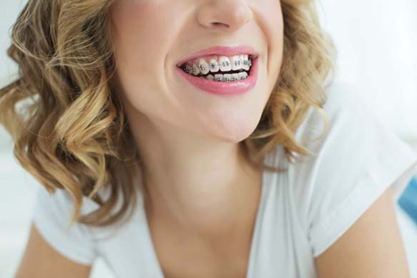 How A Braces Specialist Can Address Complex Issues [Orthodontist]